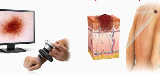 dermatoskopiia