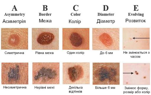melanoma-krtynka