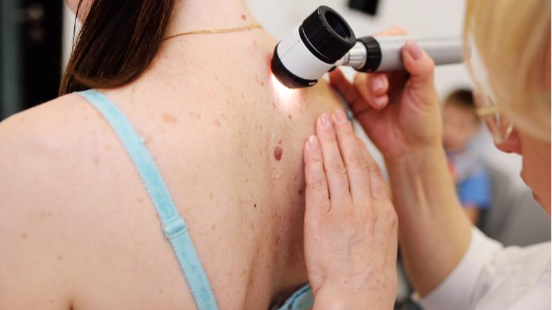 melanoma-zastavka